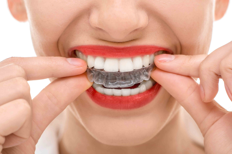 ortodonzia barili
